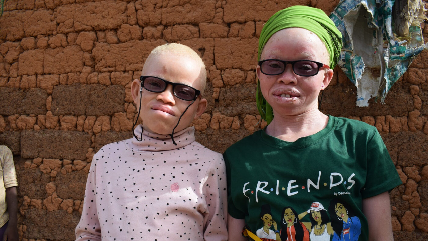 Two children with albinism wearing dark glasses stand outside in the sun.