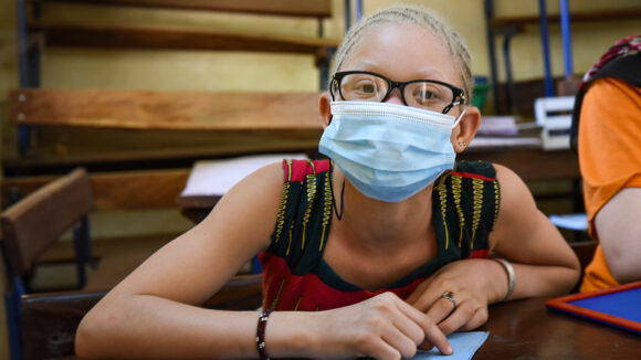 A girl, who has albinism and is wearing glasses and a mask, sits in a classroom.