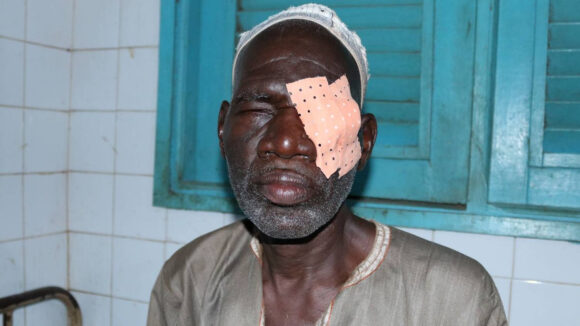 Ouedraogo with a bandage over his left eye.