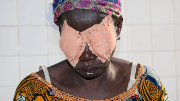 Virginie wearing bandages over her eyes after surgery.