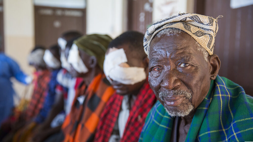 A man looks into the camera and smiles: one of his eyes is red after treatment for trachoma.